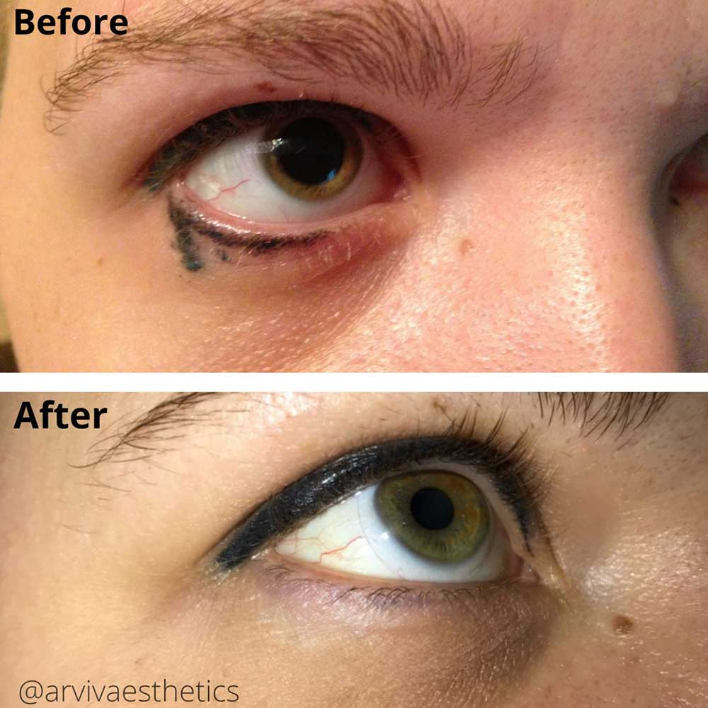 Are There Any Risks to Eyeliner Tattoo Removal?
