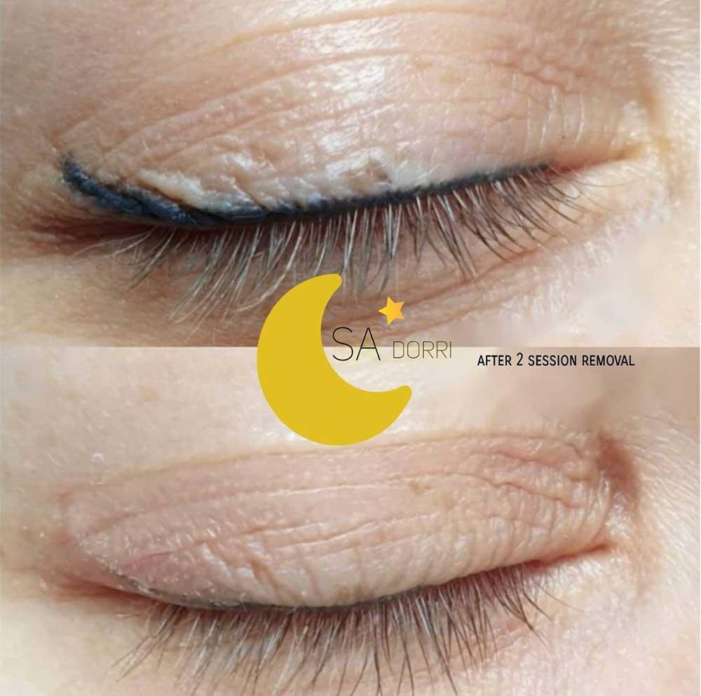 Permanent Eyeliner Saline Removal