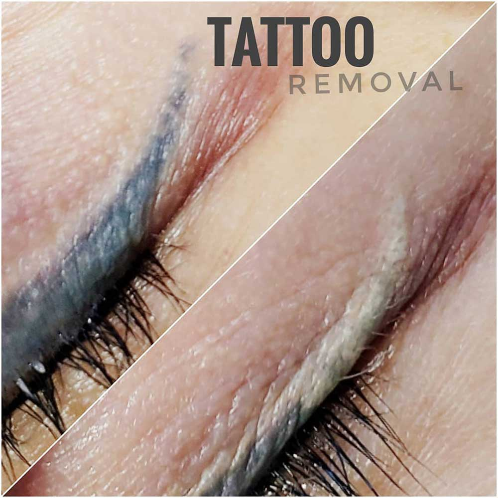 How Does Laser Permanent Makeup Removal Work?