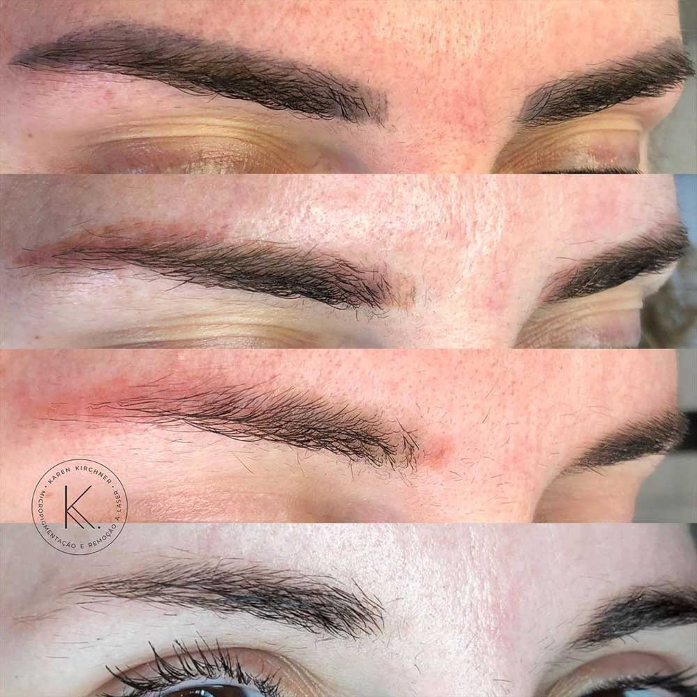 How Can Permanent Makeup Be Removed?