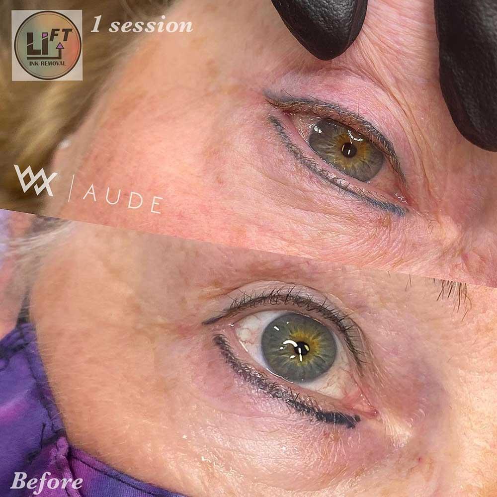 Saline Eyeliner Tattoo Removal