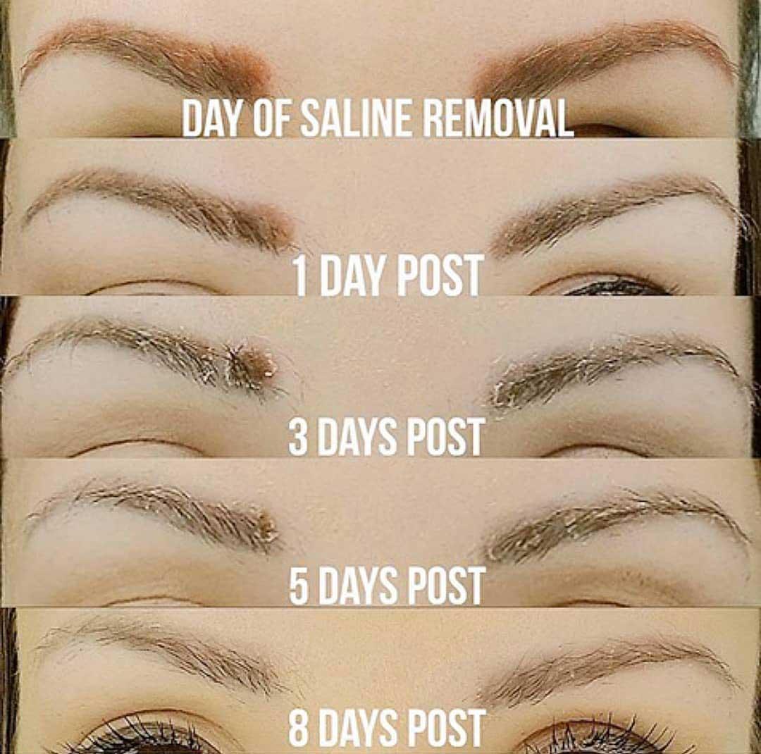 Saline permanent makeup removal healing