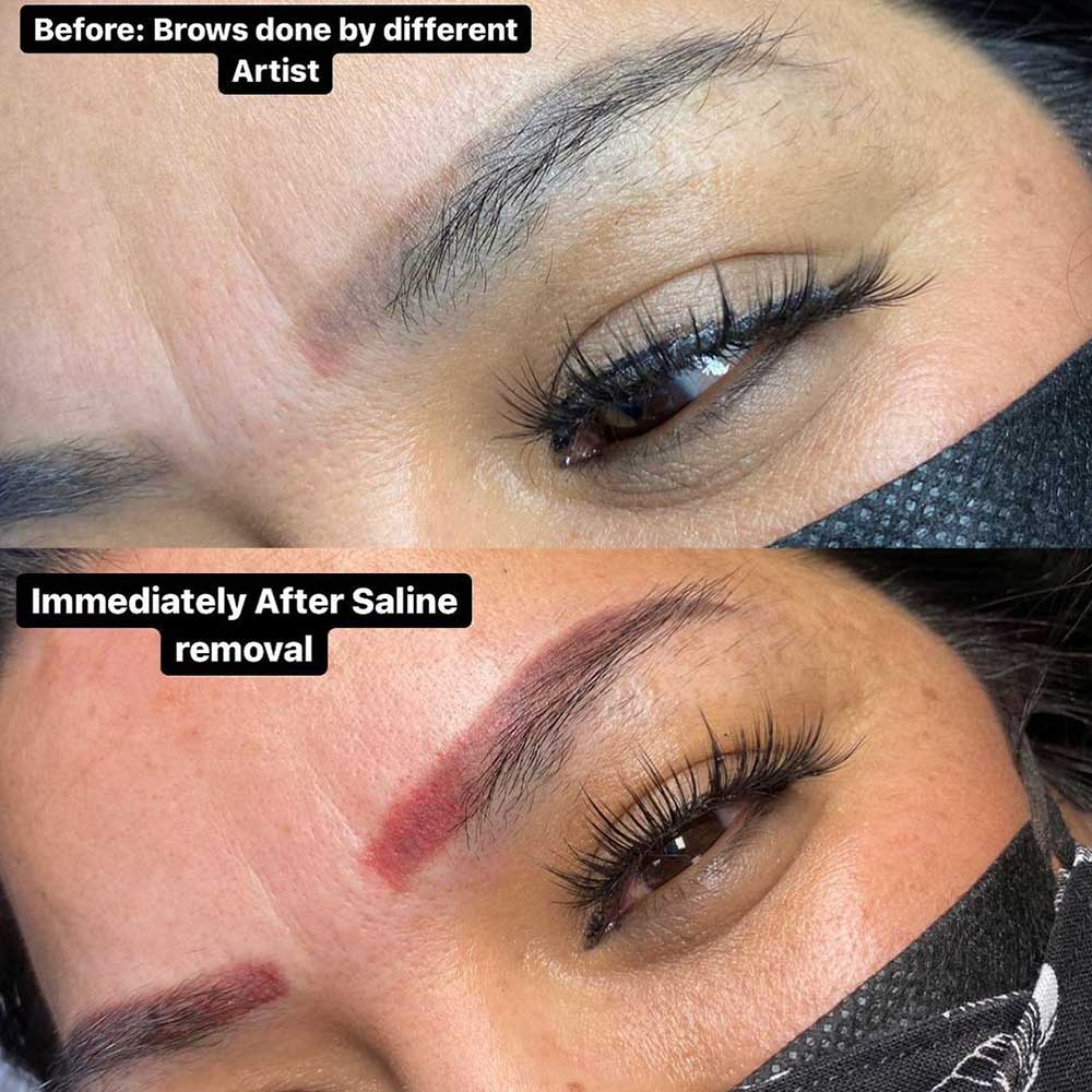 Saline Tattoo Removal Healing Process