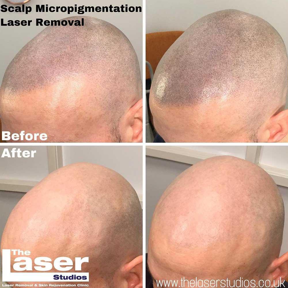 Scalp Micropigmentation Laser Removal