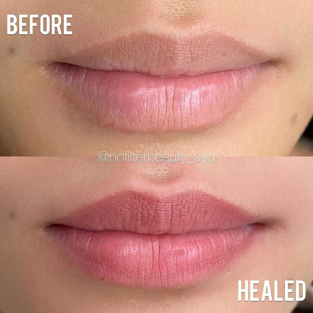 What's the Price of the Lip Tattoo Touch Ups?