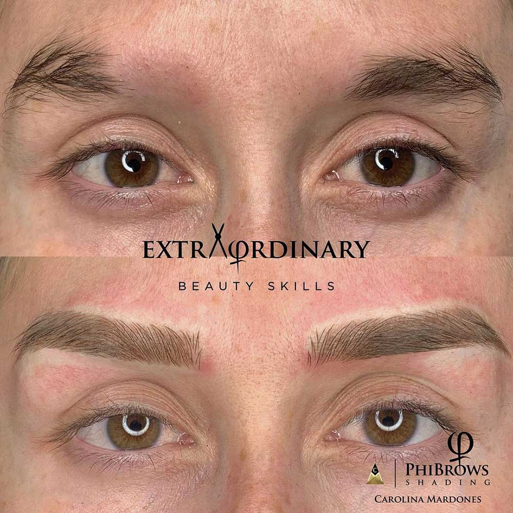 What are the benefits of permanent makeup scar camouflage?