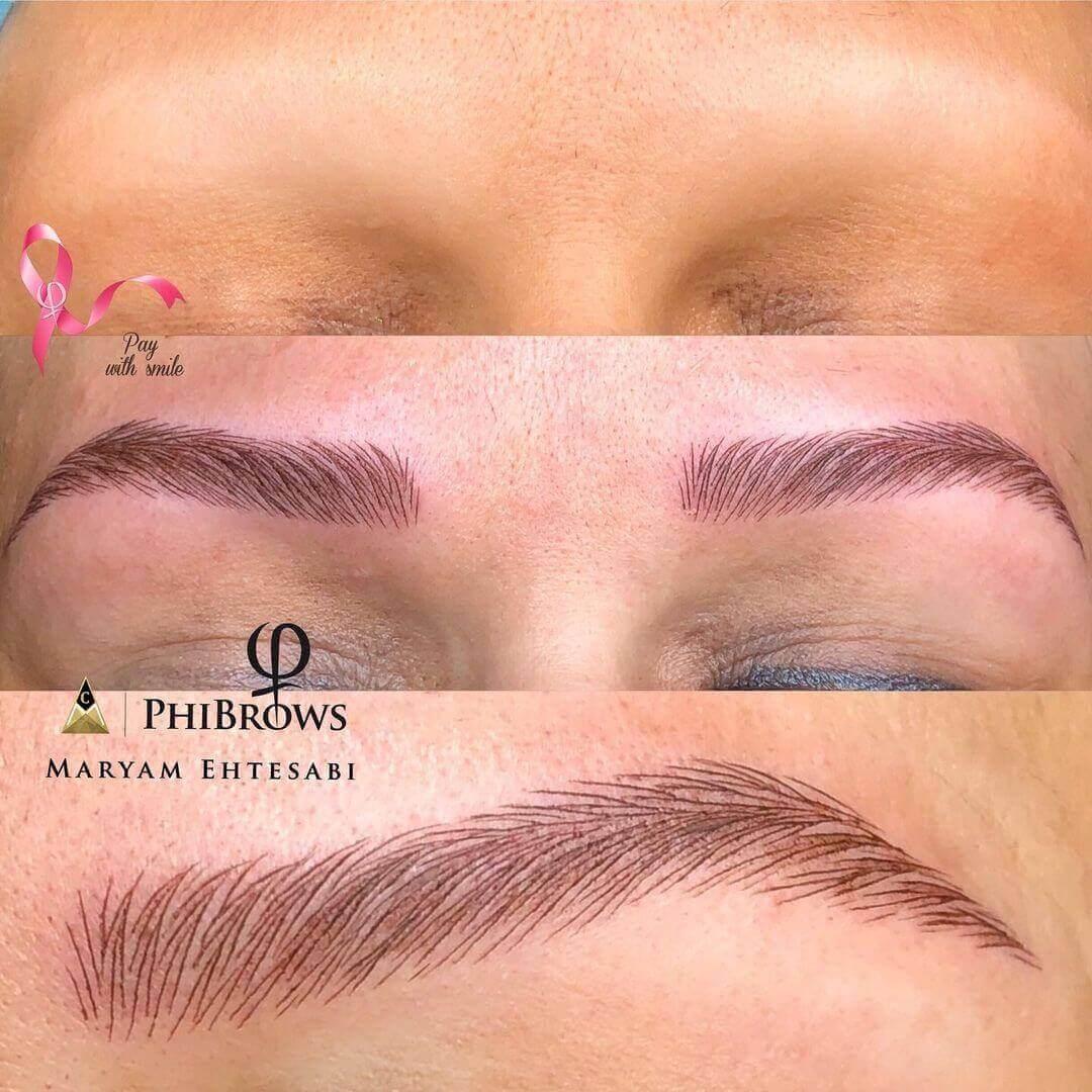 Eyebrow tattoo for Alopecia clients