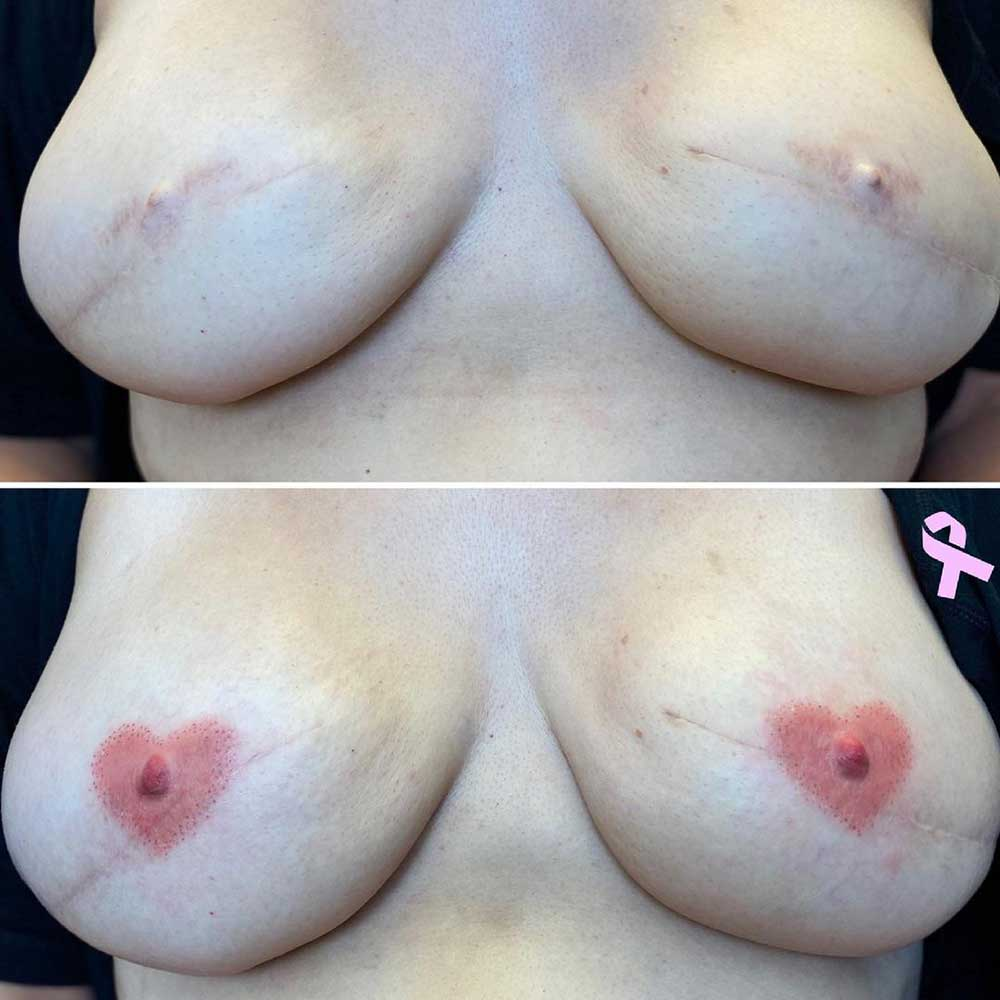 What Styles of the Heart Nipple Tattoo Are Available?