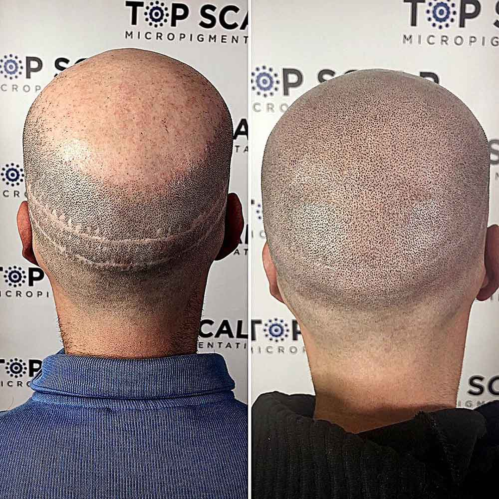 What is scar camouflage through micropigmentation?